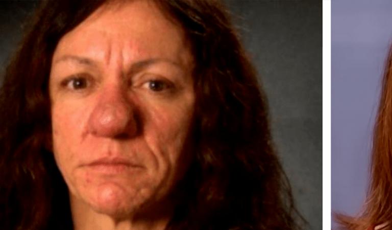 Le nez de Pamela grossit de façon incontrôlable depuis ses 15 ans : elle retrouve un visage normal après une opération