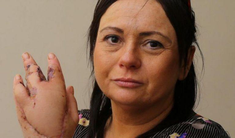 Moira a failli mourir après une griffure de chat, elle a attrapé une infection qui mange sa chair