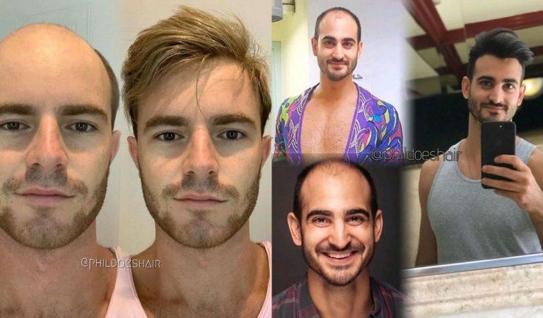 20 hommes qui se sont métamorphosés après une transplantation capillaire
