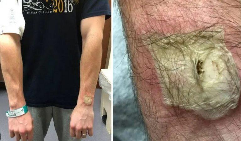 Un homme gravement brûlé par sa montre connectée pendant son sommeil