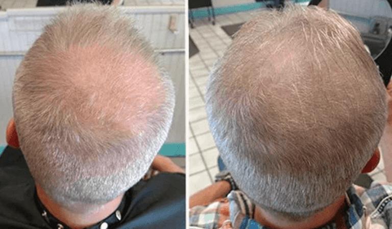 Un homme prétend que boire son urine a fait repousser ses cheveux