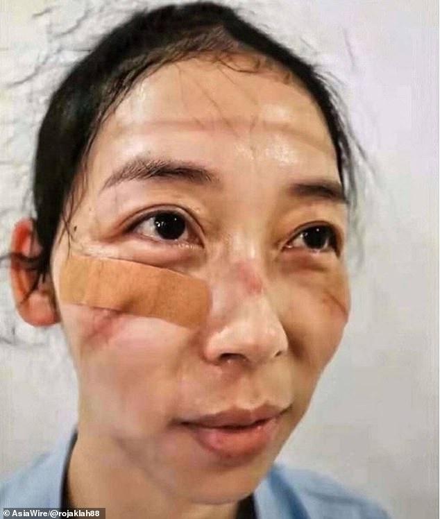 masque visage hopital