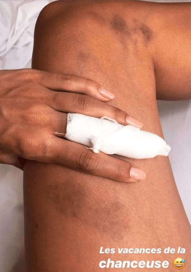 Iris Mittenaere montre sa jambe couverte de bleus à cause de son accident de karting en Corse
