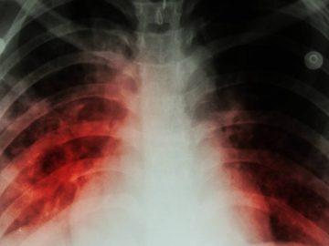 Une radiographie d'un patient atteint de pneumonie.