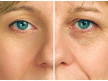 Les aliments qui vieillissent le plus la peau.