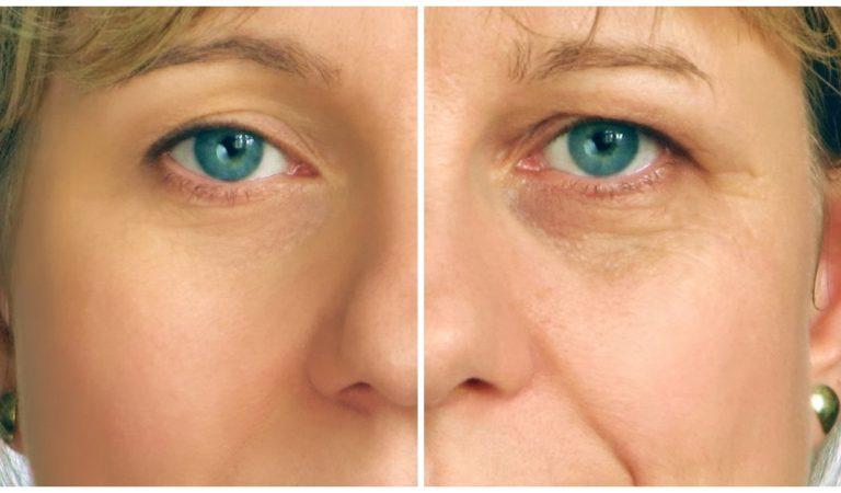 Les 6 aliments qui accélèrent le plus le vieillissement de la peau