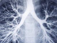 Un scanner des poumons.