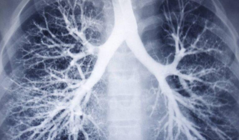 Covid-19 : Le virus entraîne le développement d'une nouvelle maladie, alerte une spécialiste