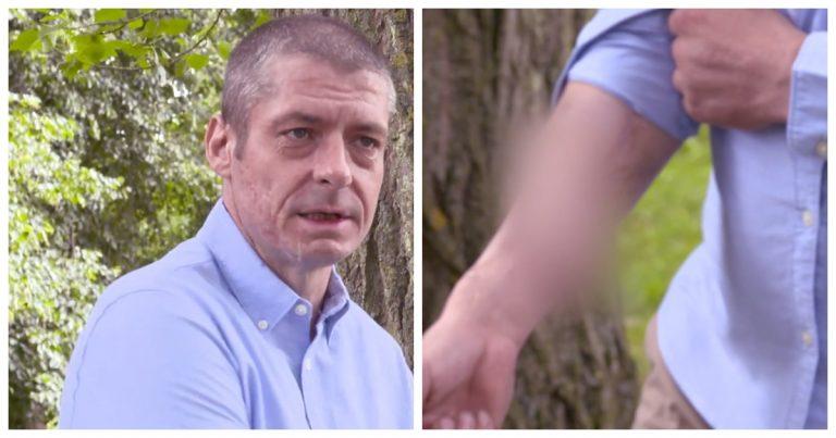 Malcolm montrant son phallus greffé sur son bras.