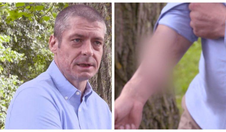 Cet homme se fait greffer sa verge sur le bras après qu'elle est tombée à cause de la gangrène
