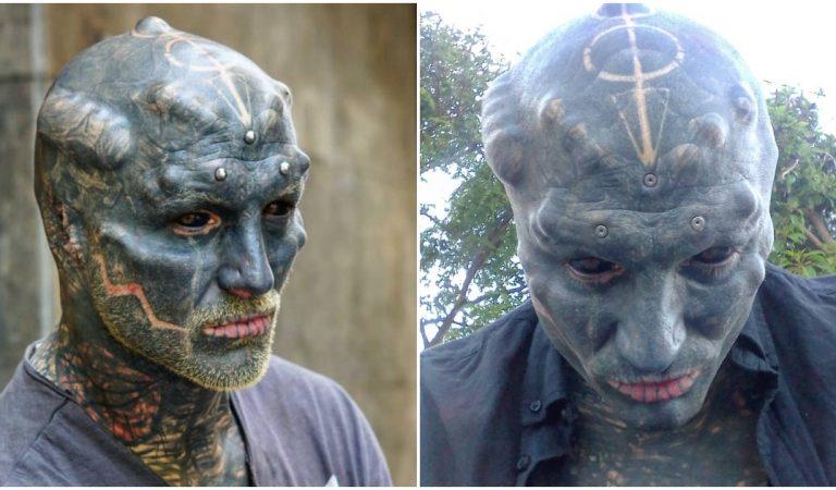 Le Montpelliérain «Black Alien» s'est fait retirer le nez et ne compte pas s'arrêter là