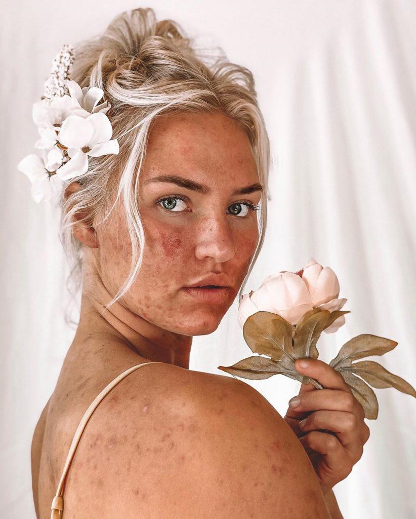 Mik Zazon influenceuse avec de l'acné.