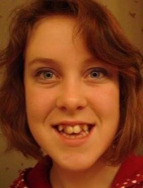 Justine, harcelée à l'école à cause de ses dents.