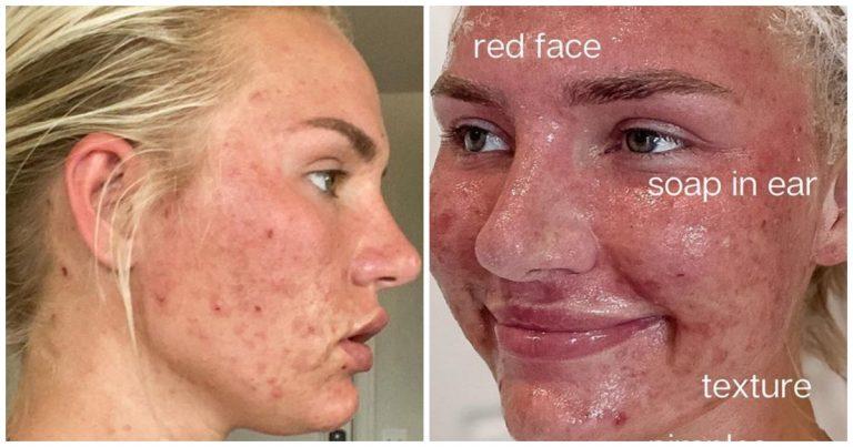 Mik Zazon dévoile sa peau avec de l'acné sur Instagram.
