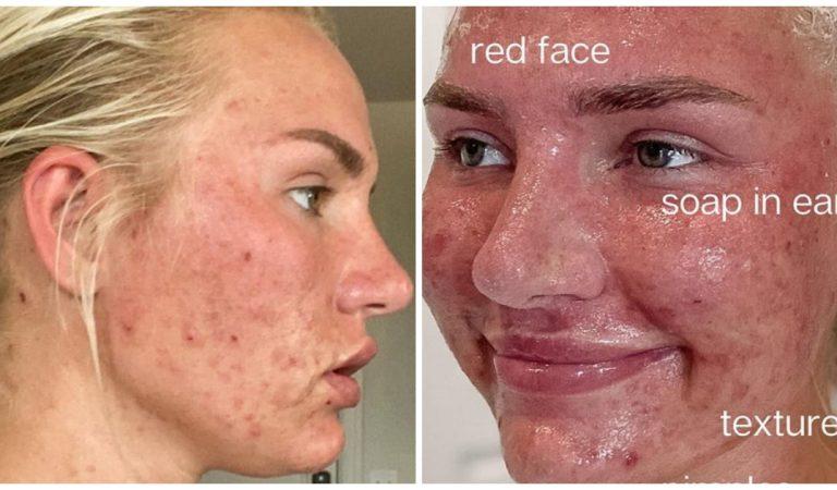Une ado ravagée par l'acné prend sa revanche en devenant une influenceuse