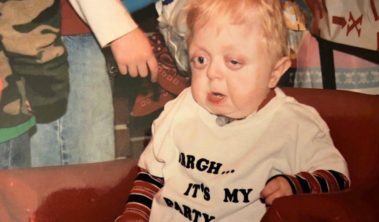 Ce bébé «déformé» célèbre ses 18 ans alors qu'il était condamné par les médecins à la naissance