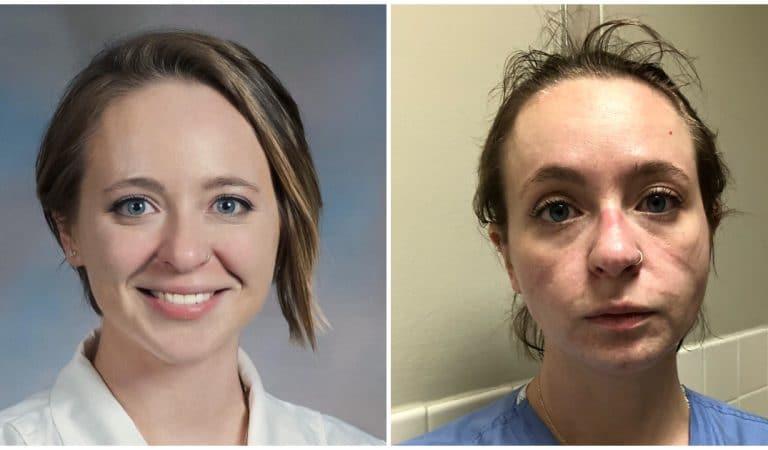 Les images d'une infirmière marquée par la fatigue et les traces de son masque font le tour du monde