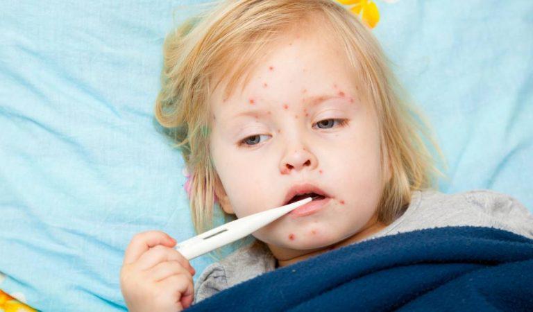 La rougeole est de retour en France probablement à cause des parents «anti-vaccins»