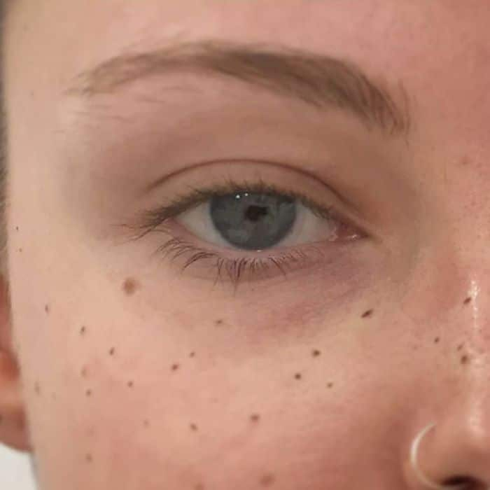 tatouage freckling taches de rousseur