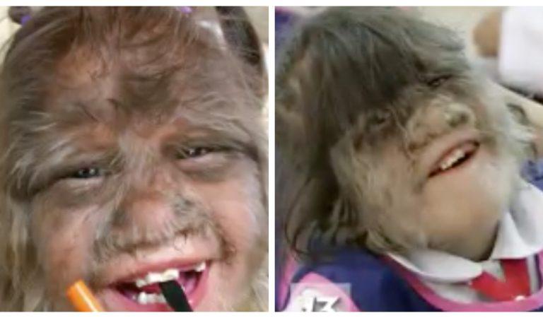 Syndrome du loup-garou : d'immenses poils poussent sur 20 enfants qui ont reçu le mauvais médicament