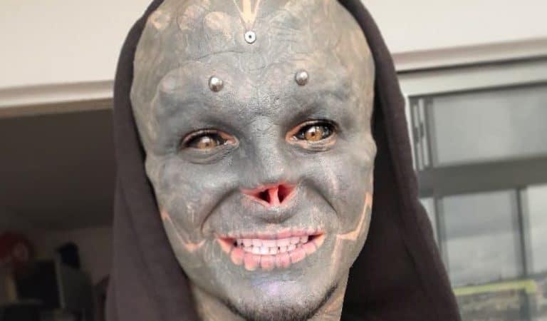Black Alien : après le nez, Anthony Loffredo se fait retirer une autre partie du visage