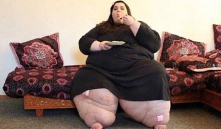 Avant-après : Amber pesait 300 kilos, elle est maintenant méconnaissable