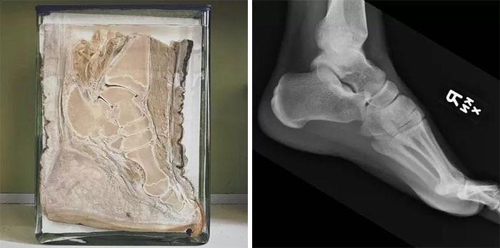 Patte d'éléphant comparée à un pied d'homme