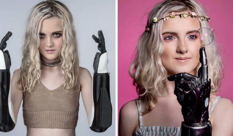 L'adolescente aux bras bioniques témoigne : « c'est cool d'être différente ! »