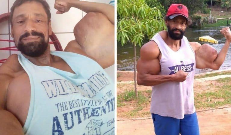 Un bodybuilder brésilien prêt à tout pour gonfler ses muscles