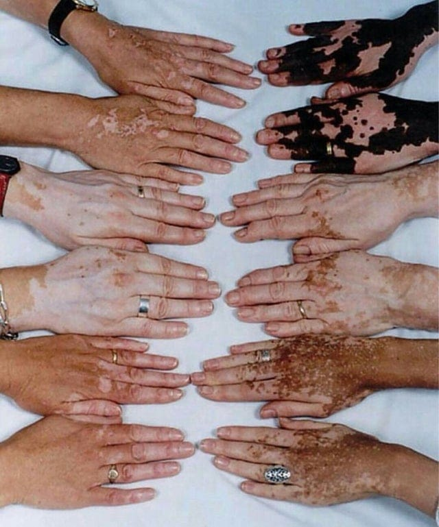 Mains de personnes atteintes de vitiligo
