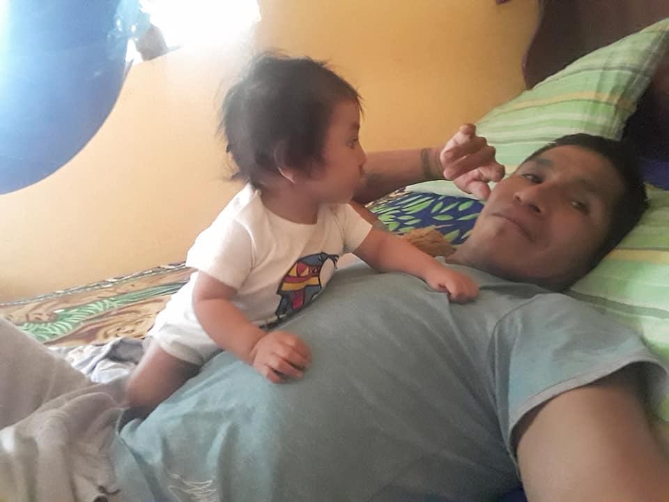 Le fils de Froylan Huaman est atteint d'une fente labiale.