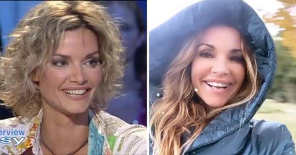 Ingrid Chauvin avant et après la chirurgie esthétique