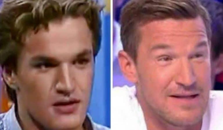 14 stars françaises qui n'ont pas lésiné sur la chirurgie esthétique