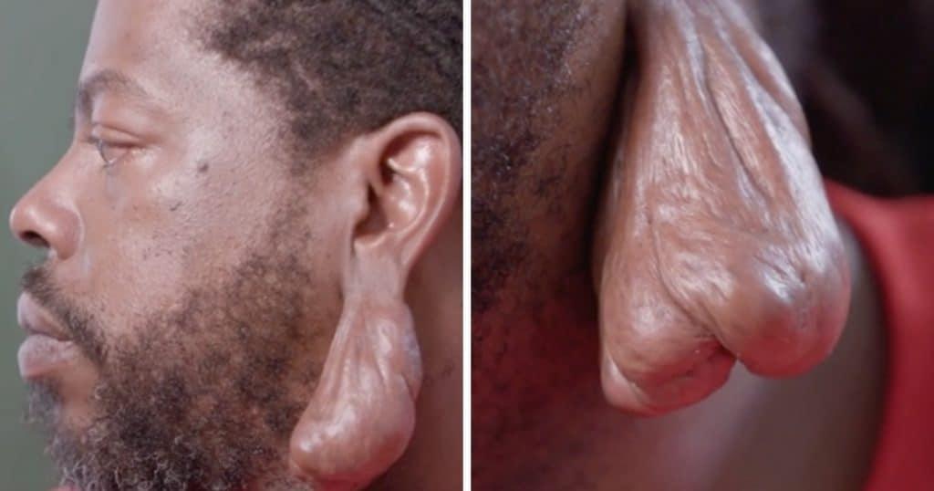 Une chéloïde sur l'oreille