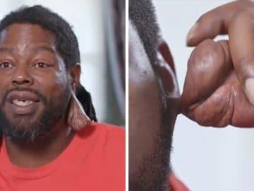 La chéloïde a poussé sur l'oreille