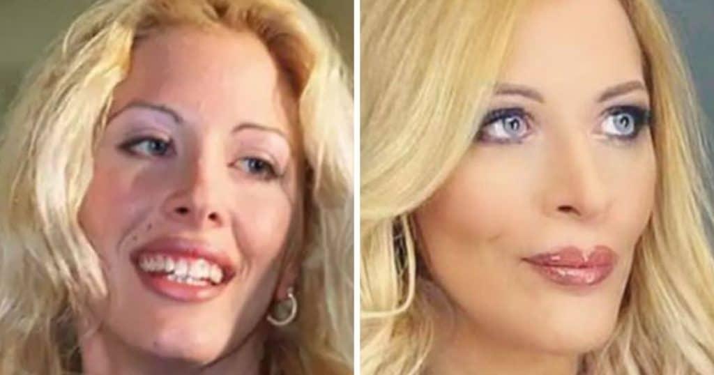 Loana avant et après la chirurgie esthétique