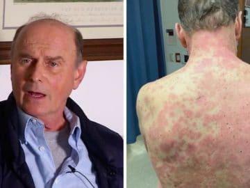 Richard Terrell a fait une allergie au vaccin Johnson et Johnson
