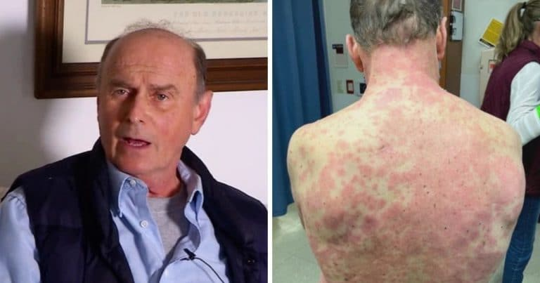 Richard Terrell a fait une allergie au vaccin Johnson et Johnson