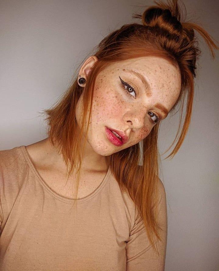 Taches de rousseur sur le visage