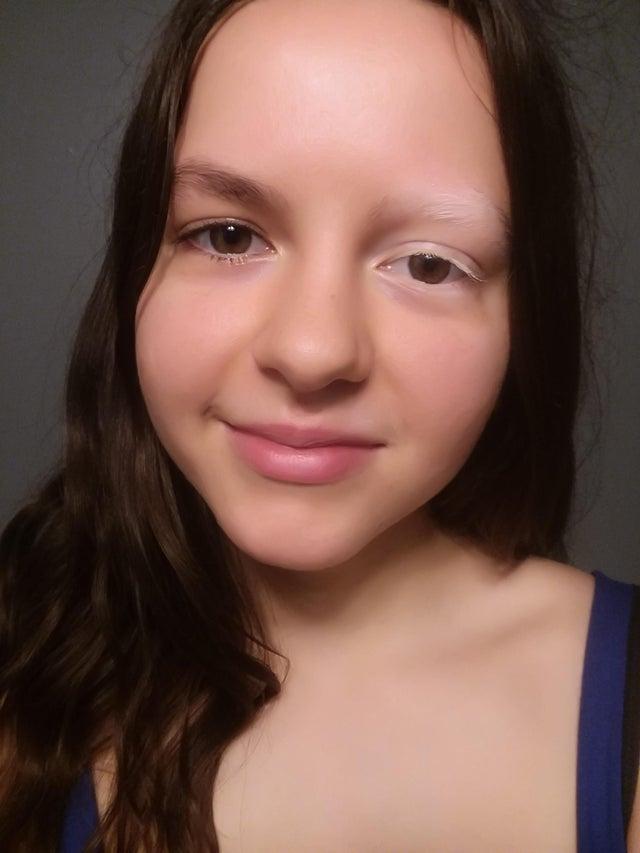 Une femme atteinte de vitiligo