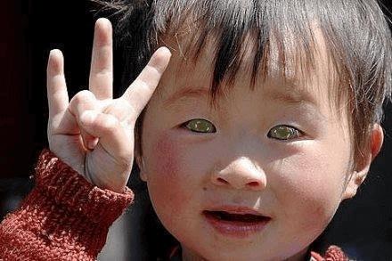 un enfant à la génétique unique