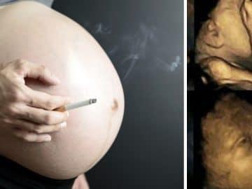 L'échographie 4D du foetus d'une mère fumeuse.