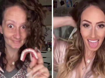 Alicia montre ses fausses dents sur TikTok
