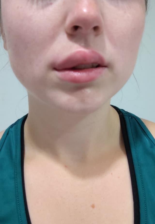 piqûre de guêpe sur la lèvre