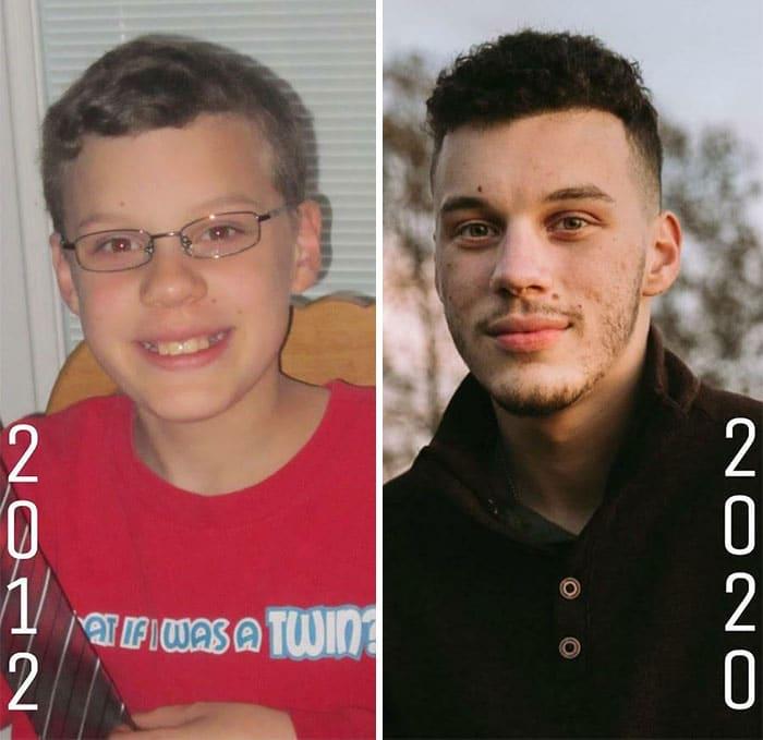 un jeune homme après la puberté
