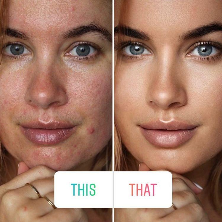 filtres de beauté