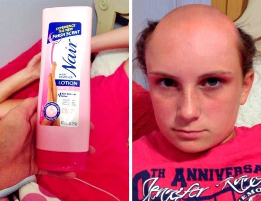 une femme au crâne chauve