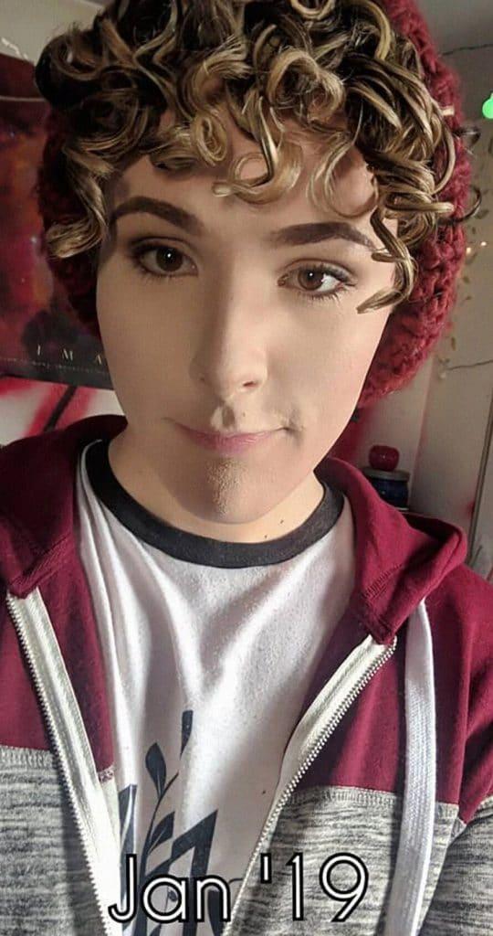 La jeune fille pendant son traitement hormonal