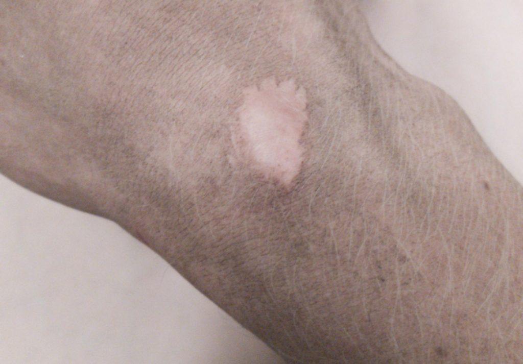 Cicatrice sur la main